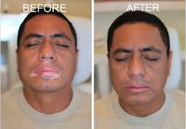 Obat Penutup Bercak Putih Vitiligo